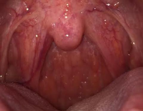 Bị ngứa họng dai dẳng có nguy hiểm?