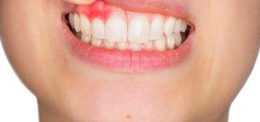 Sau khi bọc răng sứ thấy xuất hiện viêm lợi, hôi miệng?
