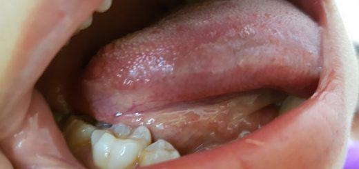Thấy xuất hiện ở cuống lưỡi có mảng trắng