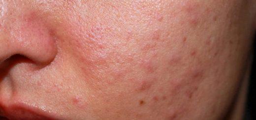 Mẩn ngứa khắp người sau sinh có nguy hiểm?