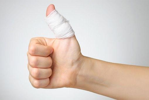 Bị đứt ngón tay có nối được không?