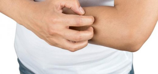 Bị ngứa khi sử dụng thuốc viêm da cơ địa có bình thường?