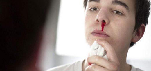 Xì mũi có máu có nguy hiểm không? điều trị như thế nào?