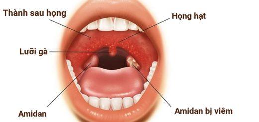 Cách điều trị viêm họng hạt dứt điểm?