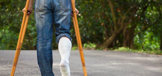 Bao lâu khi gãy liên mấu chuyển xương đùi thì hồi phục?