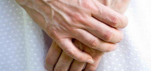 Bàn tay nổi nhiều gần xanh là do đâu ?