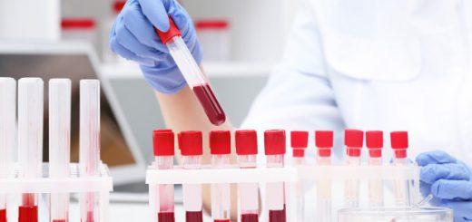 Xét nghiệm máu để phát hiện sùi mào gà được không?
