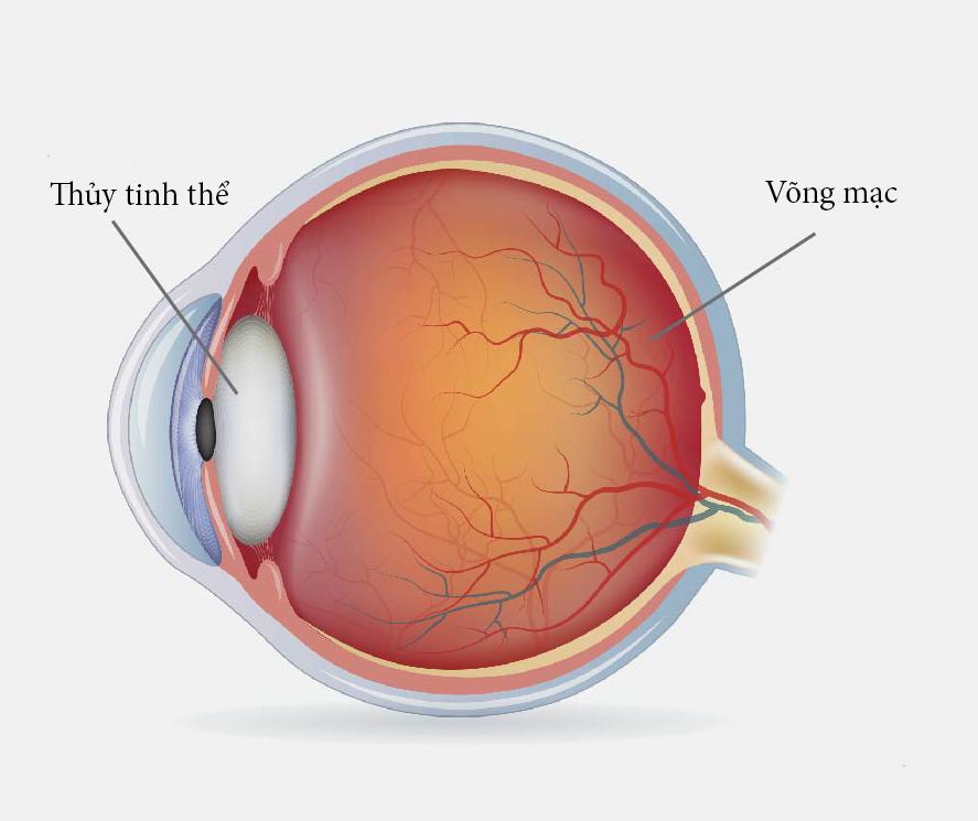 Mắt bị rách nhãn cầu phải làm sao?