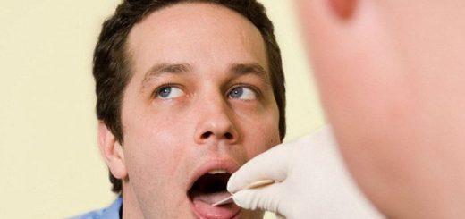 Phương pháp test HIV bằng nước bọt?