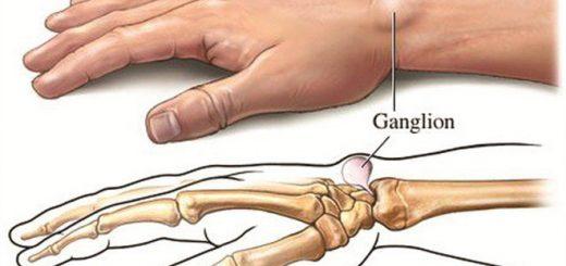 Tái phát u bao hoạt dịch cổ tay phải làm sao?