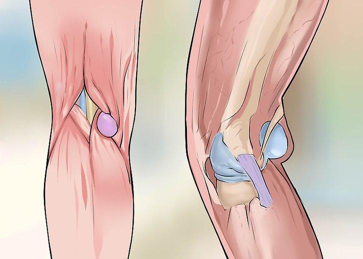 Đầu gối sưng to và nổi hạch đau là bệnh gì?