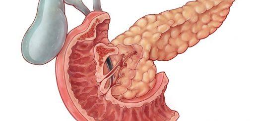 Điều trị ung thư bóng vater đã di căn lên gan