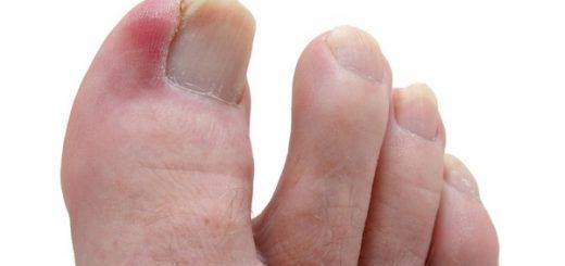 Ngón chân bị sưng và tụ mủ có nguy hiểm?