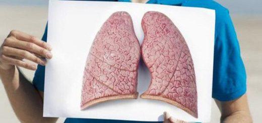 Dải xơ mảnh vùng đỉnh phổi trái?
