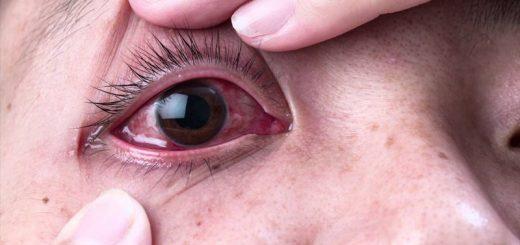 Cách phòng lây bệnh đau mắt đỏ?