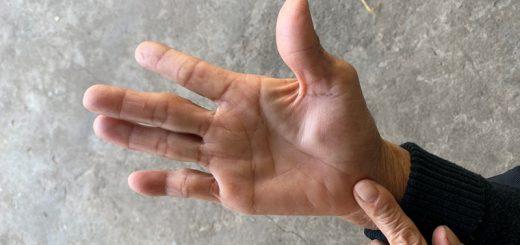 Lòng bàn tay xuất hiện khối u có nguy hiểm?