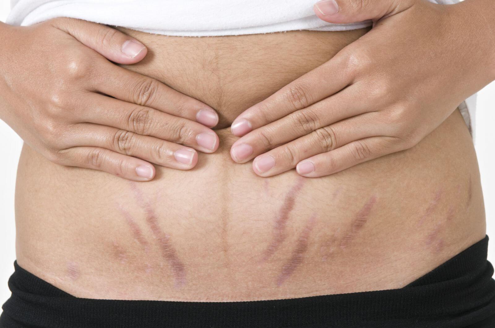Sau khi sinh vết rạn da có tự mất?