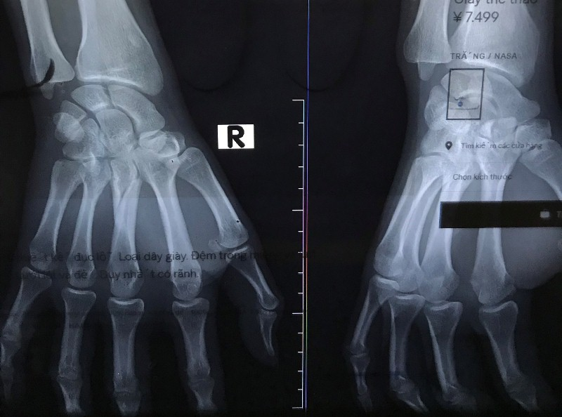 Gãy xương bàn tay bao lâu tháo được bột?
