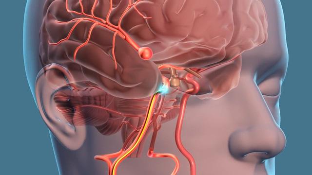 Cách chẩn đoán phình động mạch não?