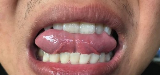 Dải thịt thừa dưới lưỡi là gì?