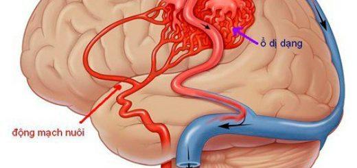 Tại sao bị dị dạng mạch máu não?