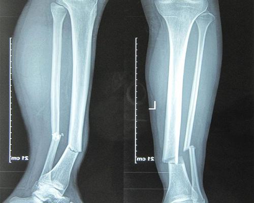 Gãy xương cẳng chân bao lâu thì lành?