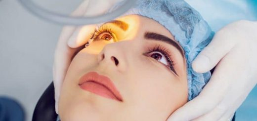 Phẫu thuật mắt bị cận?