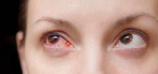 Bị lây khi nhìn vào mắt người bị đau mắt đỏ?