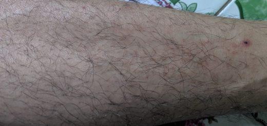 Điều trị bệnh ghẻ gây chàm hóa ở chân?