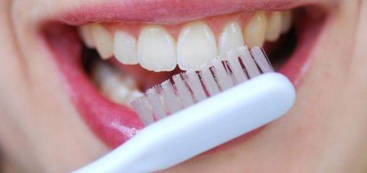 Khử vết đen ở kẽ răng?