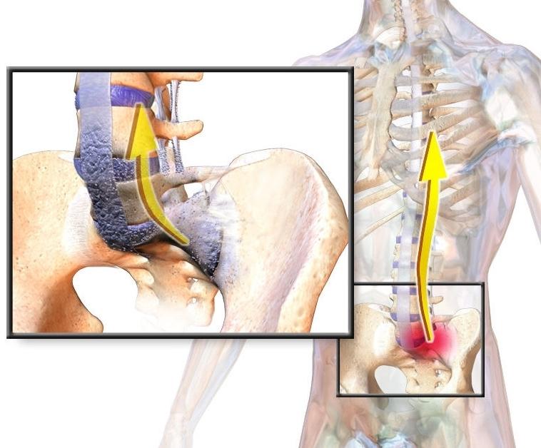 Đau từ mông dọc xuống chân là bệnh gì?