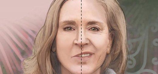 Miệng méo một bên có phải bị liệt dây thần kinh số 7?