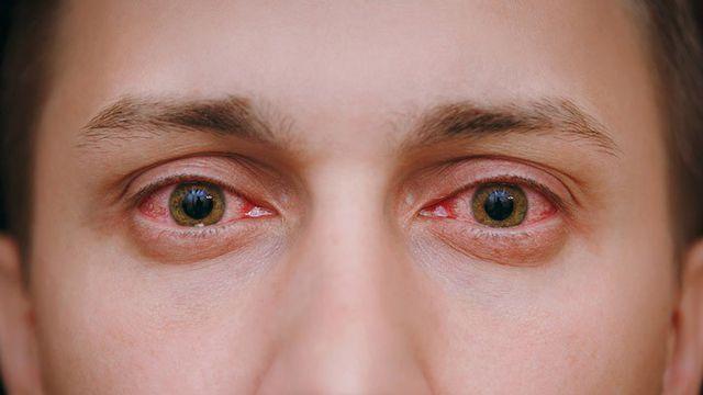 Mắt sưng đỏ và rát có nguy hiểm?
