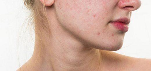 Nóng trong người, nổi mụn, vàng da là bệnh gì?