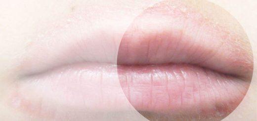 Mép miệng ửng đỏ là bệnh gì?