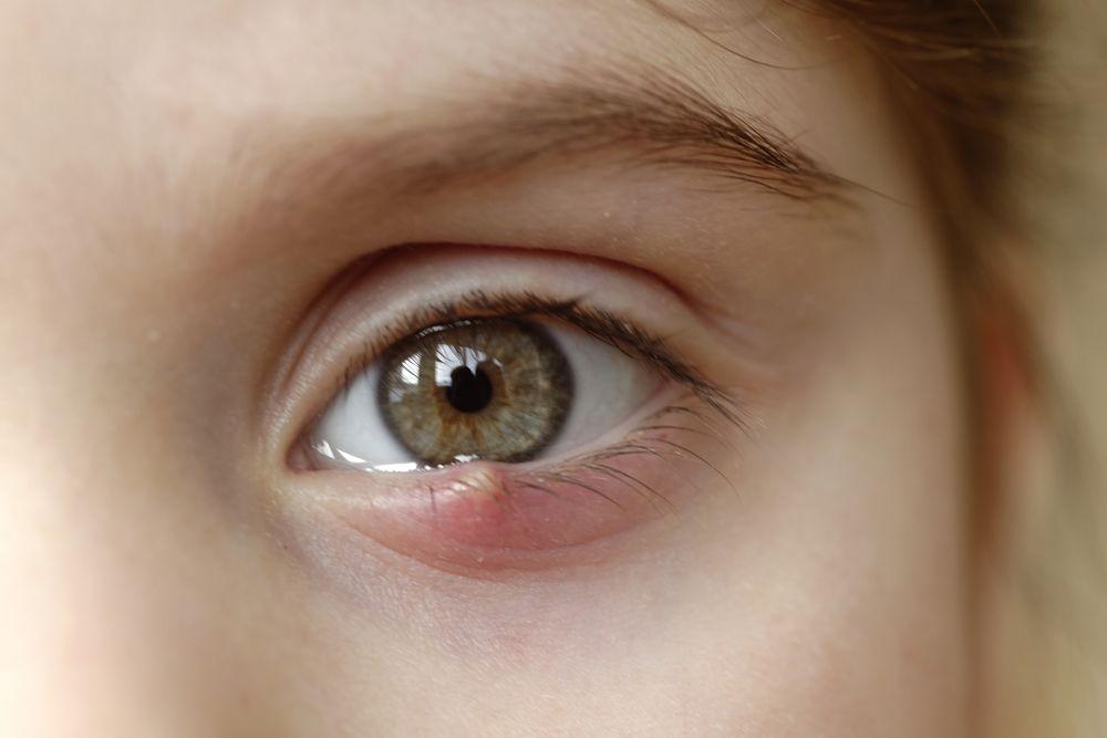 Khóe mắt đau và sưng nhẹ có nguy hiểm?