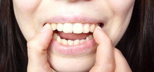 Tại sao răng bị hô?