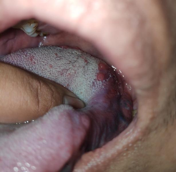 Lưỡi nổi mụn có phải bị sùi mào gà?