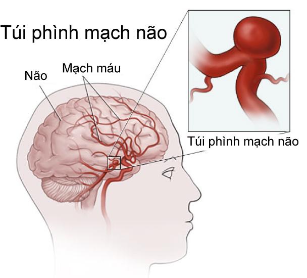 Tại sao bị hình động mạch não?