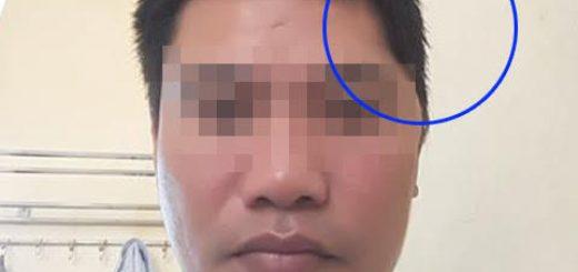 Cách điều trị bị méo đầu sau ghép sọ tự thân?