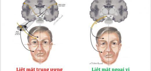 Đứt dây thần kinh số 7 có thể chữa được?