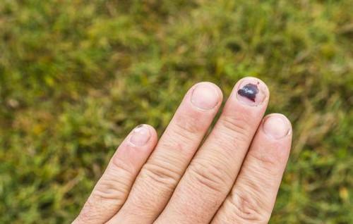 Ngón tay bị bầm tím phải làm sao?