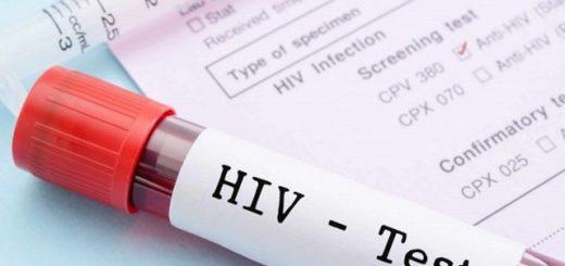Xét nghiệm âm tính sau 72 ngày thì có bị nhiễm HIV không?