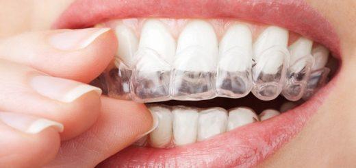 Răng sứ có niềng được không?