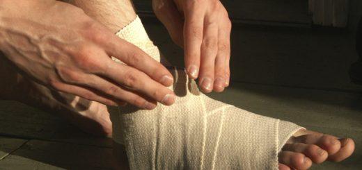 Bị sưng bàn chân do nối gân phải làm sao?