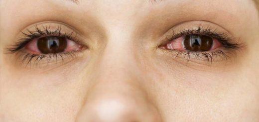 Dùng thuốc nhỏ gây ngứa mắt phải làm sao?