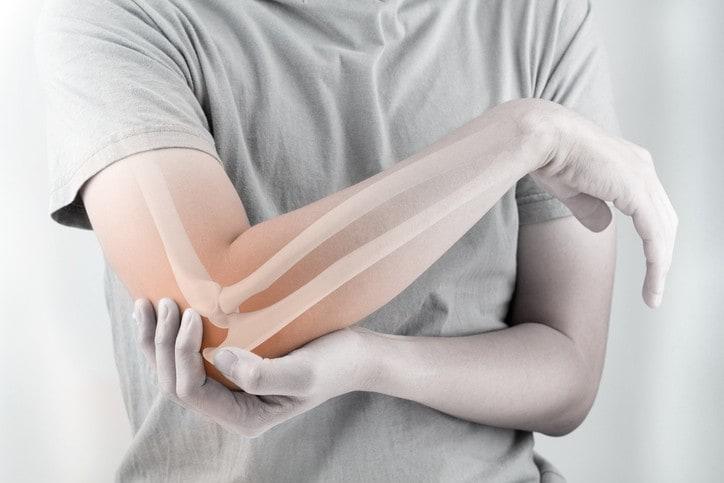 Gãy xương vùng khuỷu, bị vẹo trục phải làm sao?