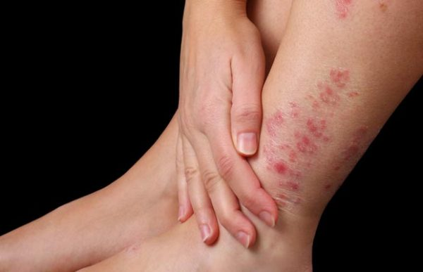 Thuốc đông ý chữa được viêm da cơ địa không?