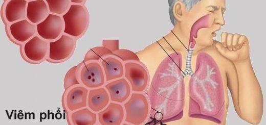 Bị bệnh viêm phổi có dễ tái phát không?