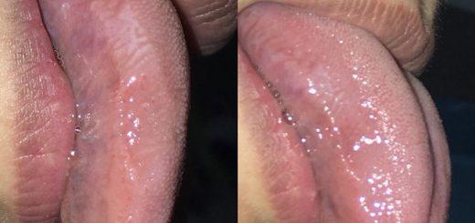 Hai bờ lưỡi có hình răng cưa là bệnh gì?